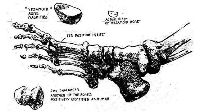 Adolph Luetgert's bone evidence