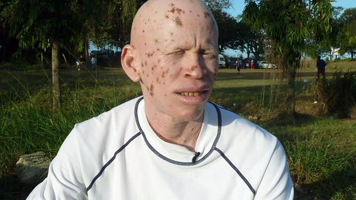 African Albinos: Albino Hunt for withcraft