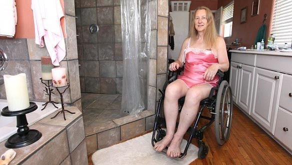 Chloe Jennings, who suffers Body Integrity Identity Disorder