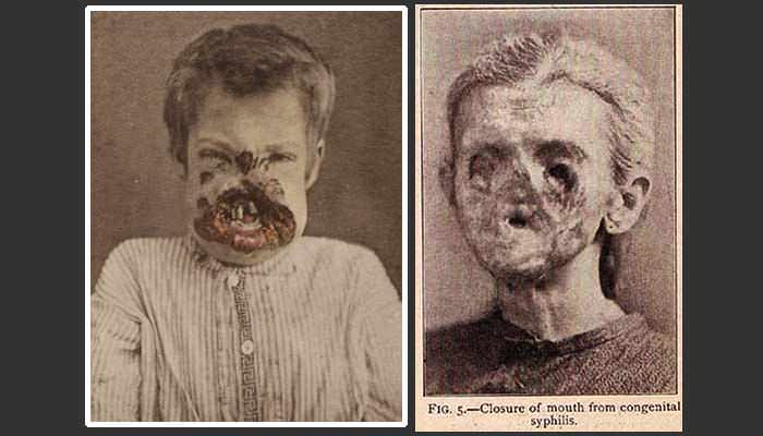 Congenital syphilis before penicillin