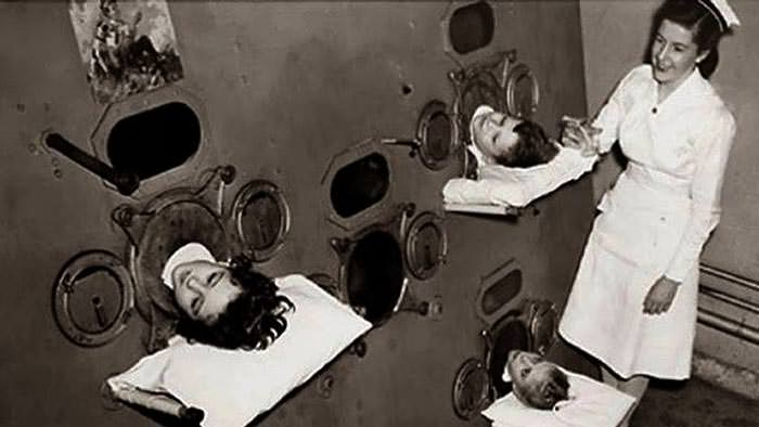 """Iron Lung"" and a woman who had to spend most of her life in it"