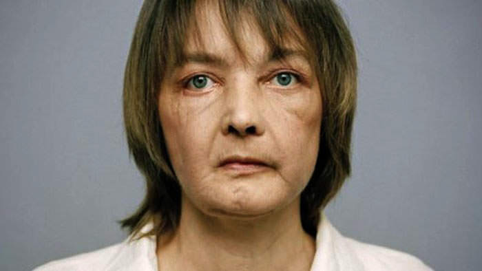 Isabelle Dinoire: The Owner of First Face Transplant